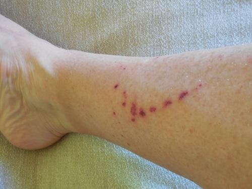 Dave's leg