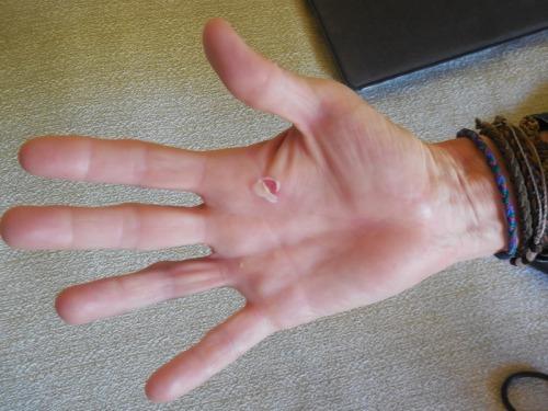 Nancy's hand
